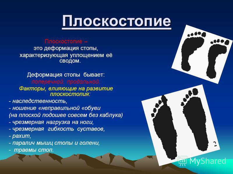 Плоскостопие Плоскостопие – это деформация стопы, характеризующая уплощением её сводом. Деформация стопы бывает: поперечной, продольной. Факторы, влияющие на развитие плоскостопия: - наследственность, - ношение «неправильной «обуви (на плоской подошв