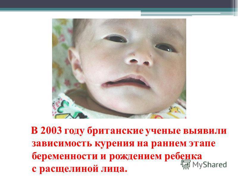 В 2003 году британские ученые выявили зависимость курения на раннем этапе беременности и рождением ребенка с расщелиной лица.