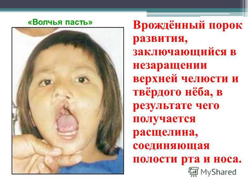 Врождённый порок развития, заключающийся в незаращении верхней челюсти и твёрдого нёба, в результате чего получается расщелина, соединяющая полости рта и носа. «Волчья пасть»