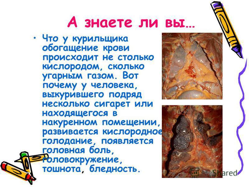 А знаете ли вы… Что у курильщика обогащение крови происходит не столько кислородом, сколько угарным газом. Вот почему у человека, выкурившего подряд несколько сигарет или находящегося в накуренном помещении, развивается кислородное голодание, появляе