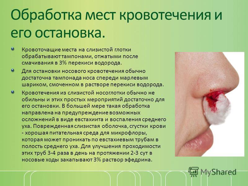Обработка мест кровотечения и его остановка. Кровоточащие места на слизистой глотки обрабатывают тампонами, отжатыми после смачивания в 3% перекиси водорода. Для остановки носового кровотечения обычно достаточна тампонада носа спереди марлевым шарико