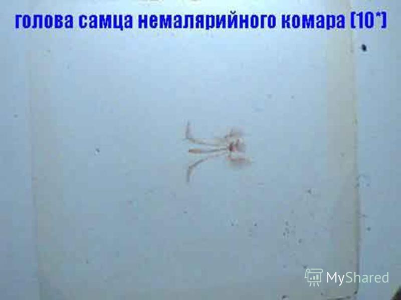 Голова комара (10*)