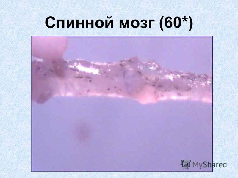 Спинной мозг (60*)