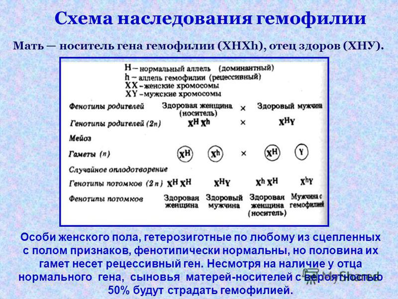 Схема наследования гемофилии Мать носитель гена гемофилии (XHXh), отец здоров (ХНУ). Особи женского пола, гетерозиготные по любому из сцепленных с полом признаков, фенотипически нормальны, но половина их гамет несет рецессивный ген. Несмотря на налич
