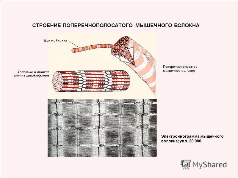 СТРОЕНИЕ ПОПЕРЕЧНОПОЛОСАТОГО МЫШЕЧНОГО ВОЛОКНА Поперечнополосатое мышечное волокно Миофибрилла Толстые и тонкие нити в миофибрилле Электроннограмма мышечного волокна; увл. 20 000.
