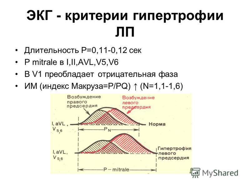 ЭКГ - критерии гипертрофии ЛП Длительность Р=0,11-0,12 сек P mitrale в I,II,AVL,V5,V6 В V1 преобладает отрицательная фаза ИМ (индекс Макруза=P/PQ) (N=1,1-1,6)