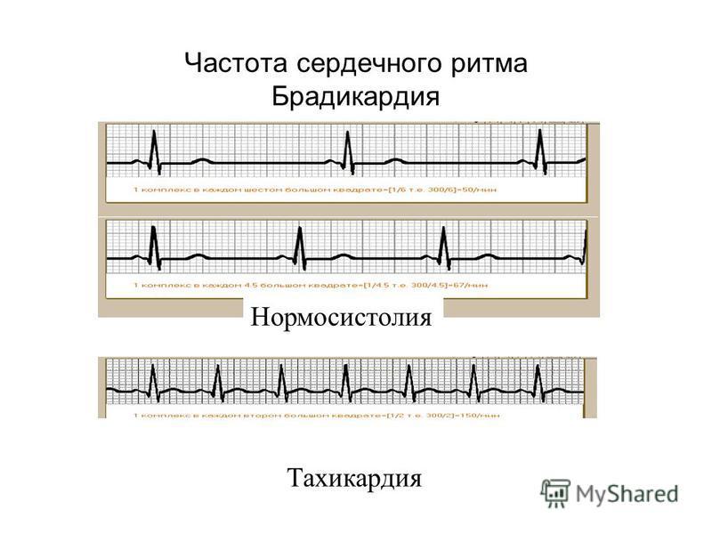 Частота сердечного ритма Брадикардия Тахикардия Нормосистолия