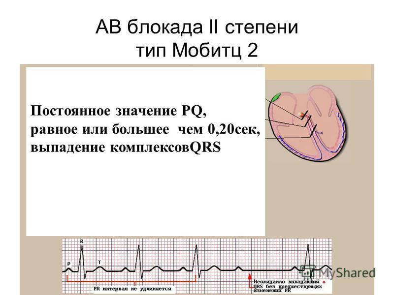 АВ блокада II степени тип Мобитц 2 Постоянное значение PQ, равное или большее чем 0,20 сек, выпадение комплексовQRS