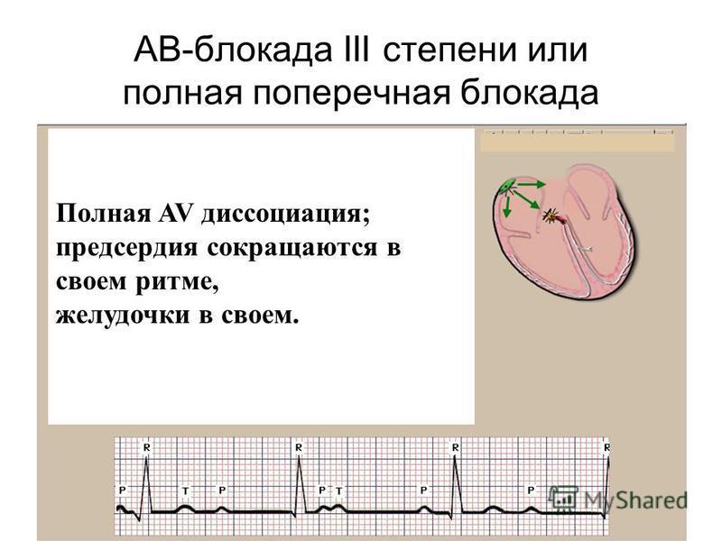 АВ-блокада III степени или полная поперечная блокада Полная AV диссоциация; предсердия сокращаются в своем ритме, желудочки в своем.