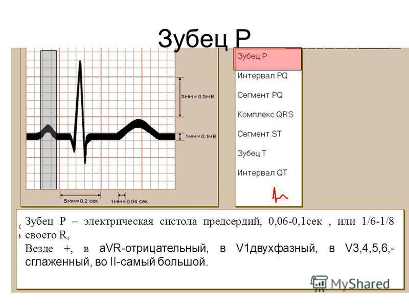 Зубец Р Зубец Р – электрическая систола предсердий, 0,06-0,1 сек, или 1/6-1/8 своего R, Везде +, в aVR-отрицательный, в V1 двухфазный, в V3,4,5,6,- сглаженный, во II-самый большой.