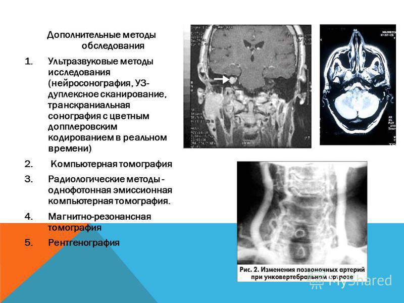 Дополнительные методы обследования 1. Ультразвуковые методы исследования (нейросонография, УЗ- дуплексное сканирование, транскраниальная сонография с цветным допплеровским кодированием в реальном времени) 2. Компьютерная томография 3. Радиологические