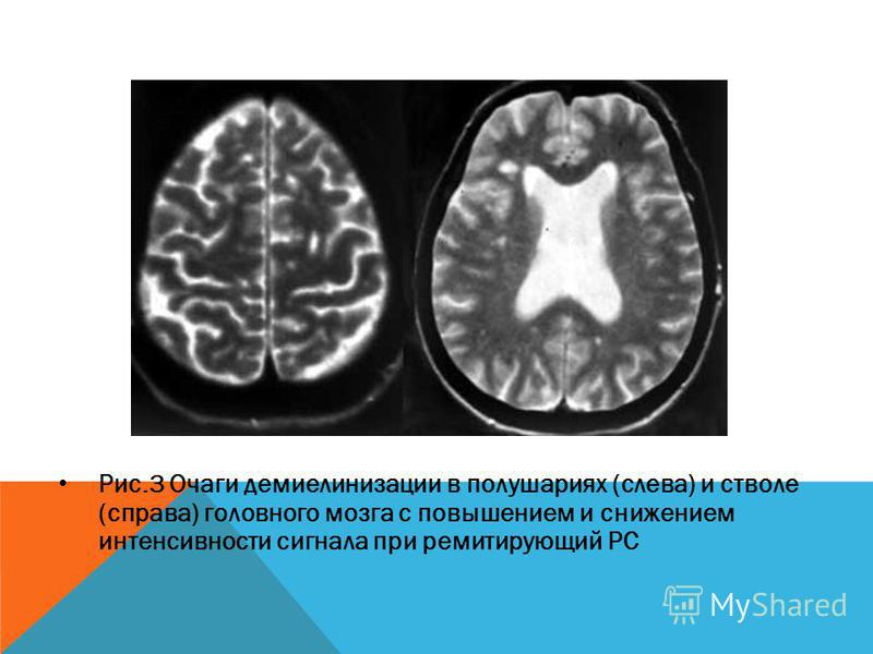 Рис.3 Очаги демиелинизации в полушариях (слева) и стволе (справа) головного мозга с повышением и снижением интенсивности сигнала при ремитирующий РС