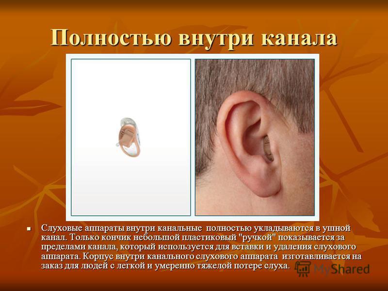 Полностью внутри канала Слуховые аппараты внутри канальные полностью укладываются в ушной канал. Только кончик небольшой пластиковый