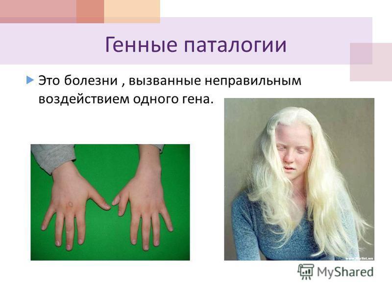 Это болезни, вызванные неправильным воздействием одного гена. Полидактилия