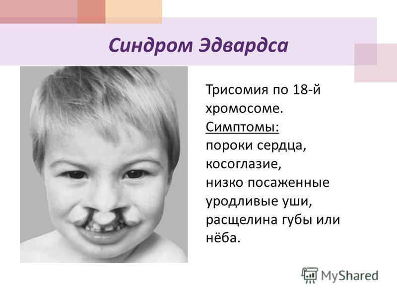 Синдром Эдвардса Трисомия по 18-й хромосоме. Симптомы: пороки сердца, косоглазие, низко посаженные уродливые уши, расщелина губы или нёба.