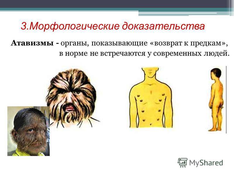 3. Морфологические доказательства Атавизмы - органы, показывающие «возврат к предкам», в норме не встречаются у современных людей.
