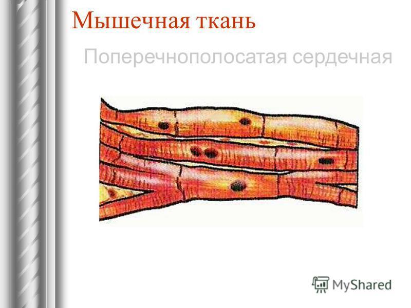 Мышечная ткань Поперечнополосатая сердечная