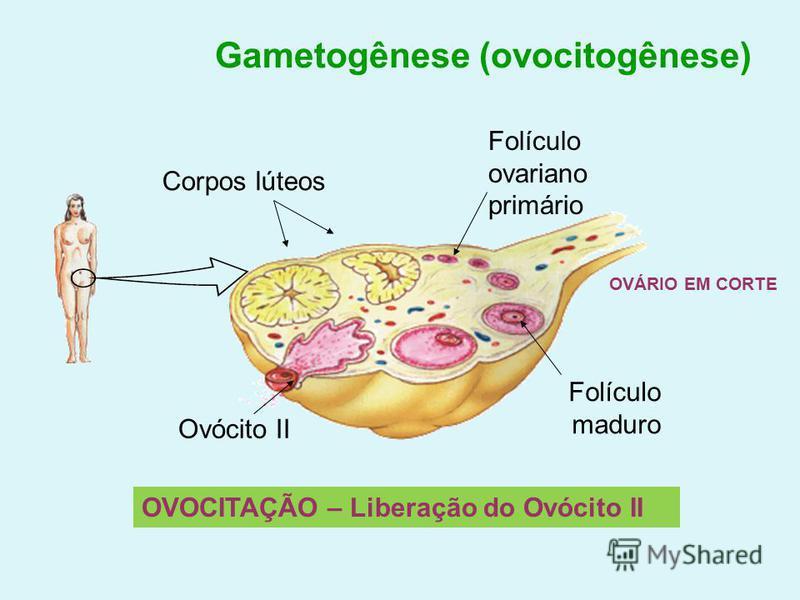 Gametogênese (ovocitogênese) Corpos lúteos Folículo ovariano primário Ovócito II Folículo maduro OVOCITAÇÃO – Liberação do Ovócito II OVÁRIO EM CORTE