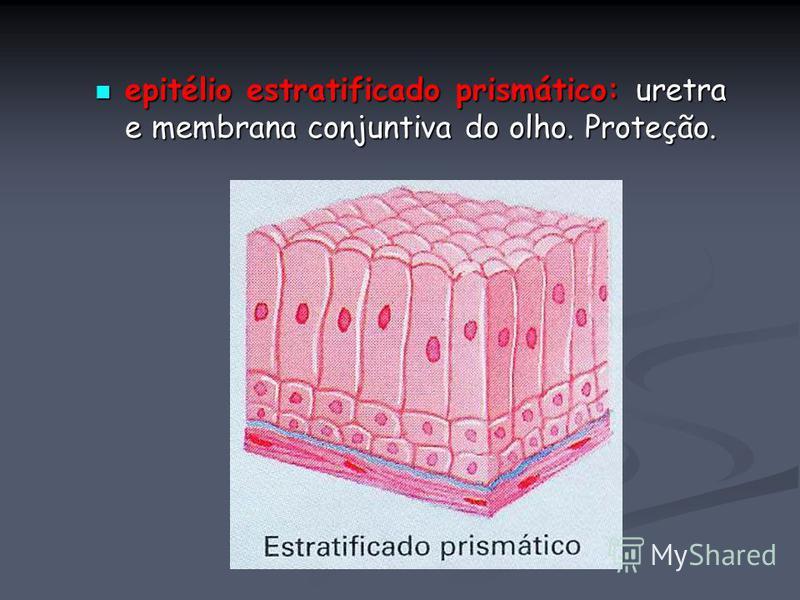 epitélio estratificado prismático: uretra e membrana conjuntiva do olho. Proteção. epitélio estratificado prismático: uretra e membrana conjuntiva do olho. Proteção.
