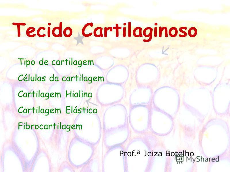 Tecido Cartilaginoso Tipo de cartilagem Células da cartilagem Cartilagem Hialina Cartilagem Elástica Fibrocartilagem Prof.ª Jeiza Botelho