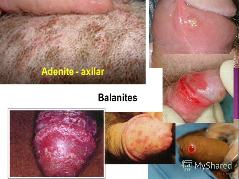 Adenite - axilar Balanites