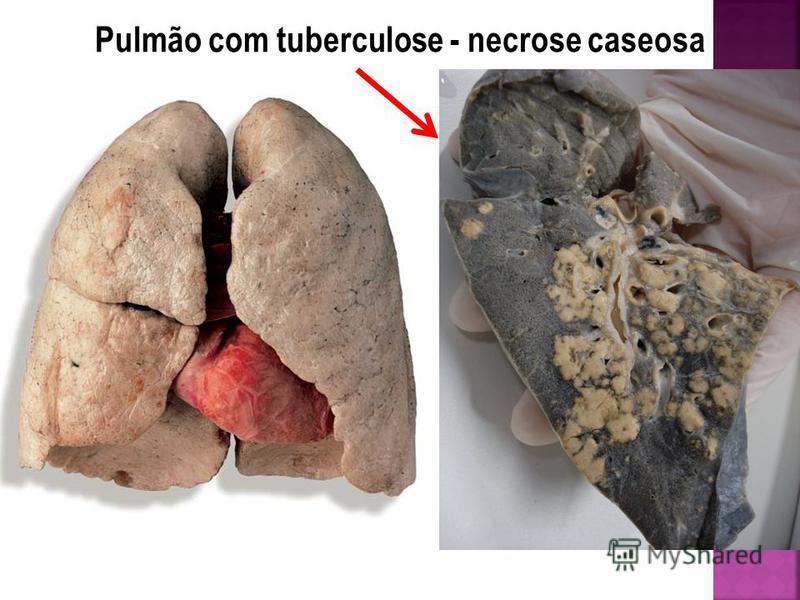 Pulmão com tuberculose - necrose caseosa