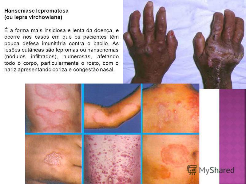Hanseniase lepromatosa (ou lepra virchowiana) É a forma mais insidiosa e lenta da doença, e ocorre nos casos em que os pacientes têm pouca defesa imunitária contra o bacilo. As lesões cutâneas são lepromas ou hansenomas (nódulos infiltrados), numeros