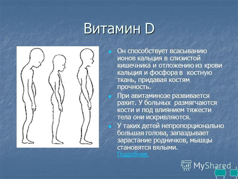 Витамин D Он способствует всасыванию ионов кальция в слизистой кишечника и отложению из крови кальция и фосфора в костную ткань, придавая костям прочность. При авитаминозе развивается рахит. У больных размягчаются кости и под влиянием тяжести тела он