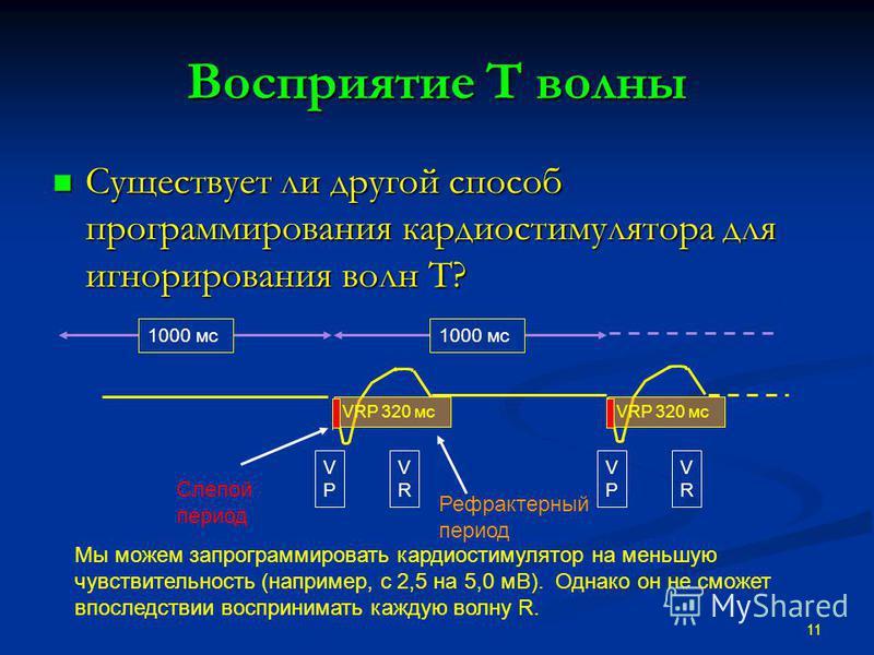 Восприятие T волны Существует ли другой способ программирования кардиостимулятора для игнорирования волн T? Существует ли другой способ программирования кардиостимулятора для игнорирования волн T? 11 VPVP VRVR VPVP VRVR 1000 мс VRP 320 мс Слепой пери