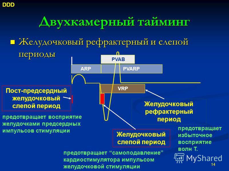 Двухкамерный тайминг Желудочковый рефрактерный и слепой периоды Желудочковый рефрактерный и слепой периоды 14 Пост-предсердный желудочковый слепой период Желудочковый рефрактерный период Желудочковый слепой период VRP ARPPVARP PVAB DDD предотвращает