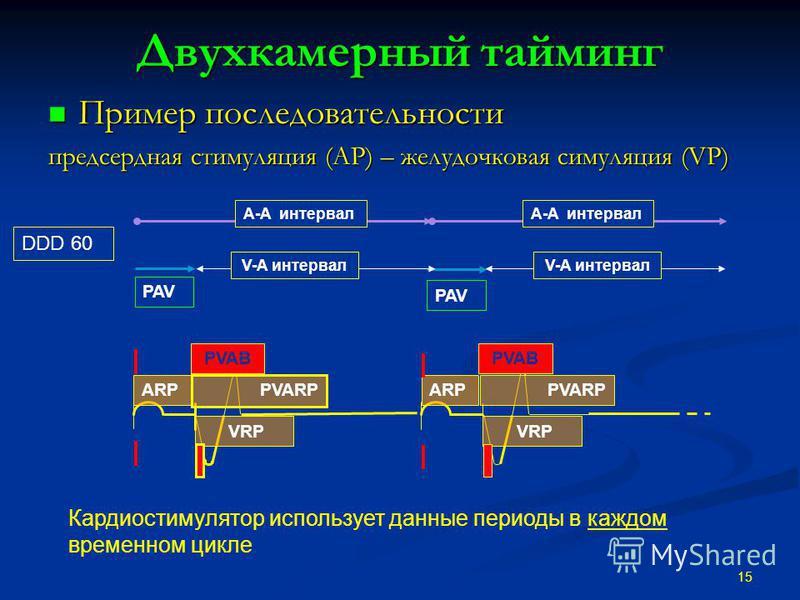 Двухкамерный тайминг Пример последовательности Пример последовательности предсердная стимуляция (AP) – желудочковая симуляция (VP) 15 DDD 60 Кардиостимулятор использует данные периоды в каждом временном цикле. A-A интервал VRP ARP PVARP PVAB VRP ARPP