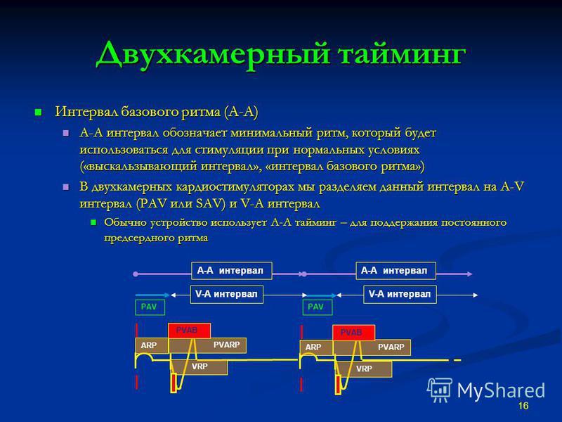 Двухкамерный тайминг Интервал базового ритма (A-A) Интервал базового ритма (A-A) A-A интервал обозначает минимальный ритм, который будет использоваться для стимуляции при нормальных условиях («выскальзывающий интервал», «интервал базового ритма») A-A