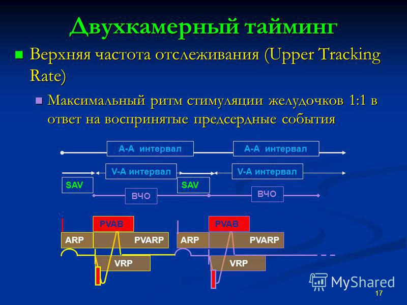 Двухкамерный тайминг Верхняя частота отслеживания (Upper Tracking Rate) Верхняя частота отслеживания (Upper Tracking Rate) Максимальный ритм стимуляции желудочков 1:1 в ответ на воспринятые предсердные события Максимальный ритм стимуляции желудочков