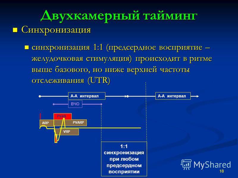 Двухкамерный тайминг Синхронизация Синхронизация синхронизация 1:1 (предсердное восприятие – желудочковая стимуляция) происходит в ритме выше базового, но ниже верхней частоты отслеживания (UTR) синхронизация 1:1 (предсердное восприятие – желудочкова