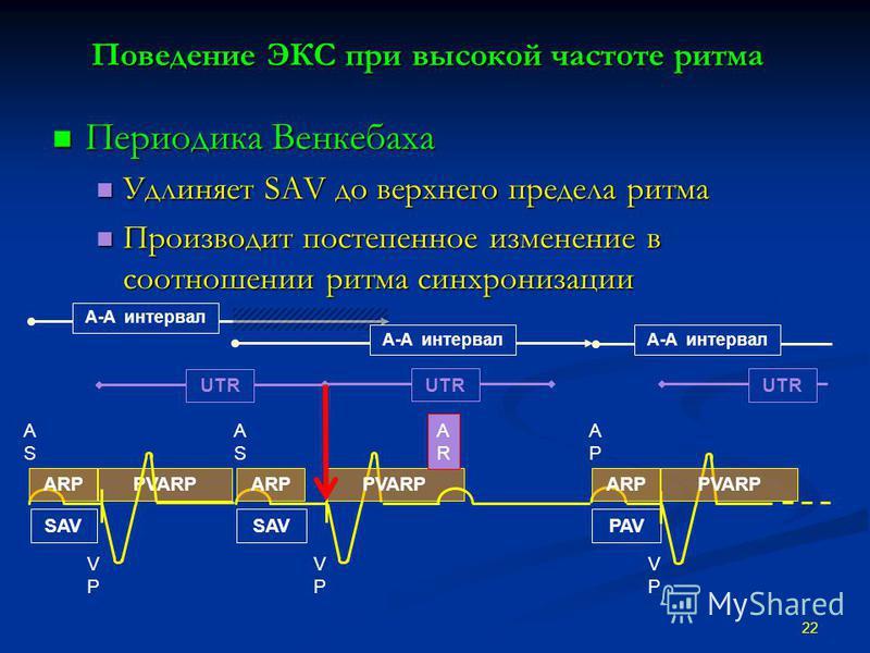 Поведение ЭКС при высокой частоте ритма Периодика Венкебаха Периодика Венкебаха Удлиняет SAV до верхнего предела ритма Удлиняет SAV до верхнего предела ритма Производит постепенное изменение в соотношении ритма синхронизации Производит постепенное из
