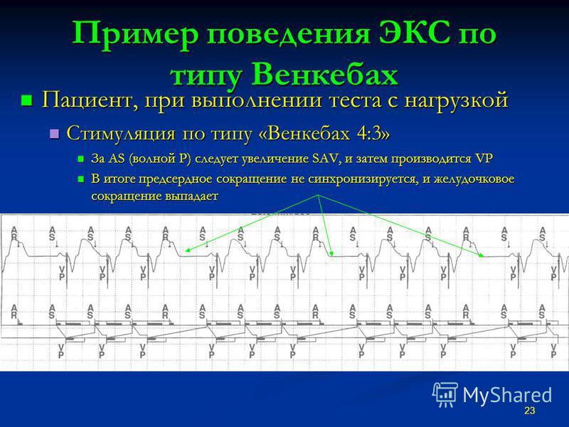 Пример поведения ЭКС по типу Венкебах Пациент, при выполнении теста с нагрузкой Пациент, при выполнении теста с нагрузкой Стимуляция по типу «Венкебах 4:3» Стимуляция по типу «Венкебах 4:3» За AS (волной Р) следует увеличение SAV, и затем производитс