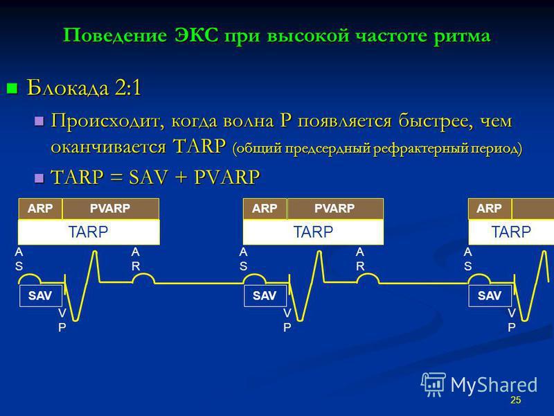 Поведение ЭКС при высокой частоте ритма Блокада 2:1 Блокада 2:1 Происходит, когда волна Р появляется быстрее, чем оканчивается TARP (общий предсердный рефрактерный период) Происходит, когда волна Р появляется быстрее, чем оканчивается TARP (общий пре