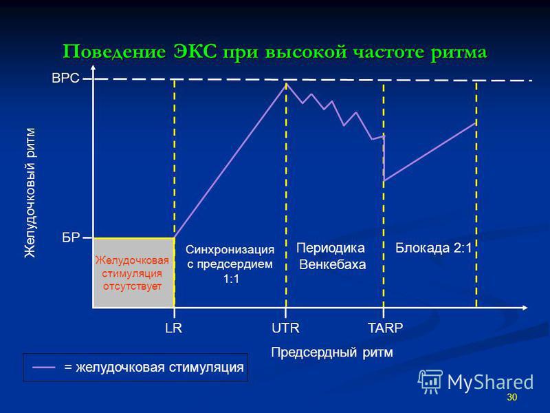 Поведение ЭКС при высокой частоте ритма 30 Периодика Венкебаха Желудочковая стимуляция отсутствует ВРС Предсердный ритм Желудочковый ритм БР Синхронизация c предсердием 1:1 Блокада 2:1 UTRLRTARP = желудочковая стимуляция