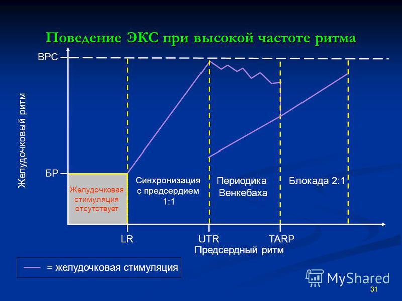 Поведение ЭКС при высокой частоте ритма 31 Периодика Венкебаха Желудочковая стимуляция отсутствует ВРС Предсердный ритм БР Синхронизация c предсердием 1:1 Блокада 2:1 UTRLRTARP = желудочковая стимуляция Желудочковый ритм