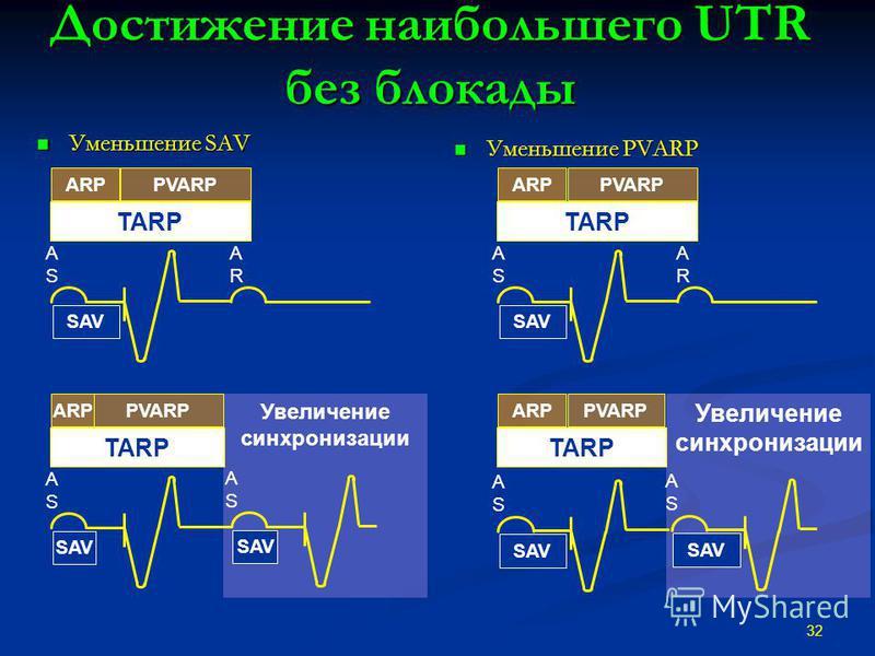 Достижение наибольшего UTR без блокады Уменьшение SAV Уменьшение SAV Уменьшение PVARP 32 Увеличение синхронизации PVARPARP SAV ASAS ARAR TARP SAV ASAS ASAS PVARPARP TARP PVARPARP SAV ASAS ARAR TARP PVARPARP SAV ASAS TARP SAV ASAS