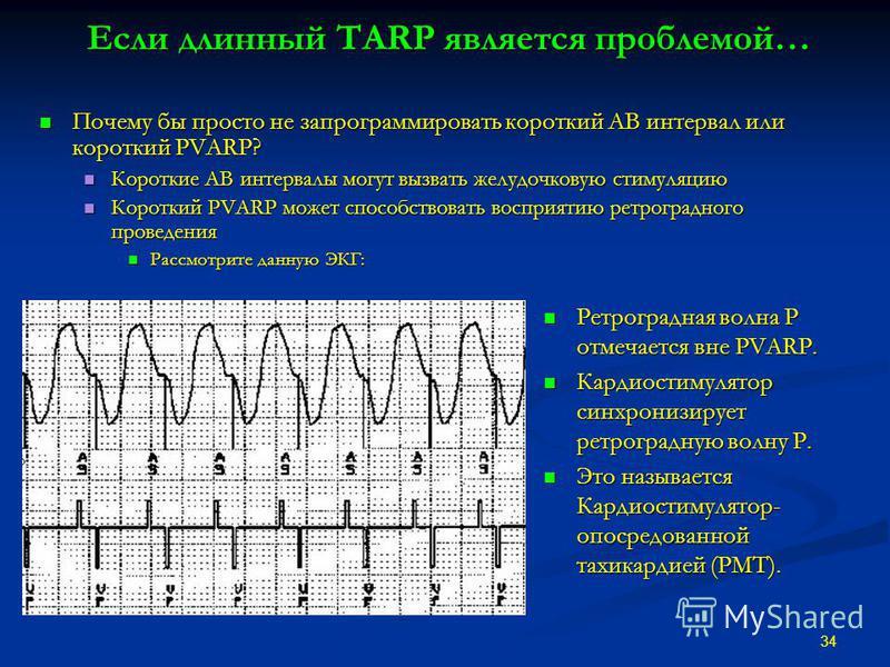 Если длинный TARP является проблемой… Почему бы просто не запрограммировать короткий АВ интервал или короткий PVARP? Почему бы просто не запрограммировать короткий АВ интервал или короткий PVARP? Короткие АВ интервалы могут вызвать желудочковую стиму