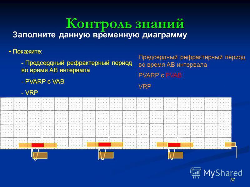 Контроль знаний 37 Покажите: - Предсердный рефрактерный период во время АВ интервала - PVARP с VAB - VRP Предсердный рефрактерный период во время АВ интервала PVARP с PVAB VRP Заполните данную временную диаграмму