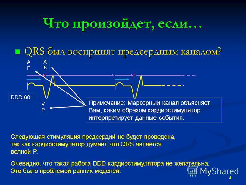 Что произойдет, если… QRS был воспринят предсердным каналом? QRS был воспринят предсердным каналом? 4 Следующая стимуляция предсердий не будет проведена, так как кардиостимулятор думает, что QRS является волной P. Очевидно, что такая работа DDD карди