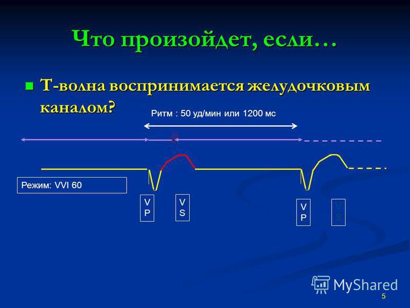 Что произойдет, если… T-волна воспринимается желудочковым каналом? T-волна воспринимается желудочковым каналом? 5 VPVP VSVS VPVP VSVS Режим: VVI 60 Ритм : 50 уд/мин или 1200 мс