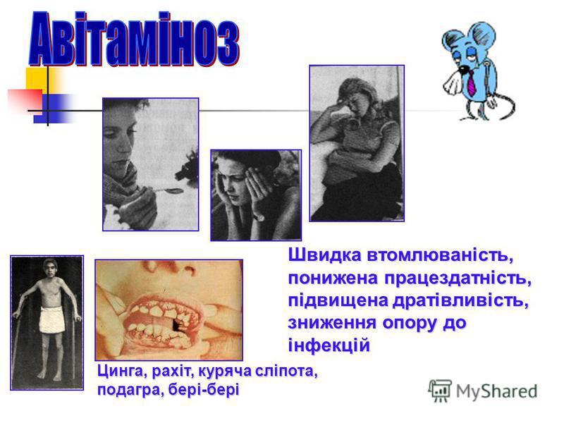Цинга, рахіт, куряча сліпота, подагра, бері-бері Швидка втомлюваність, понижена працездатність, підвищена дратівливість, зниження опору до інфекцій