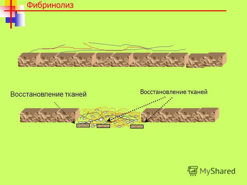 Фибринолиз Восстановление тканей