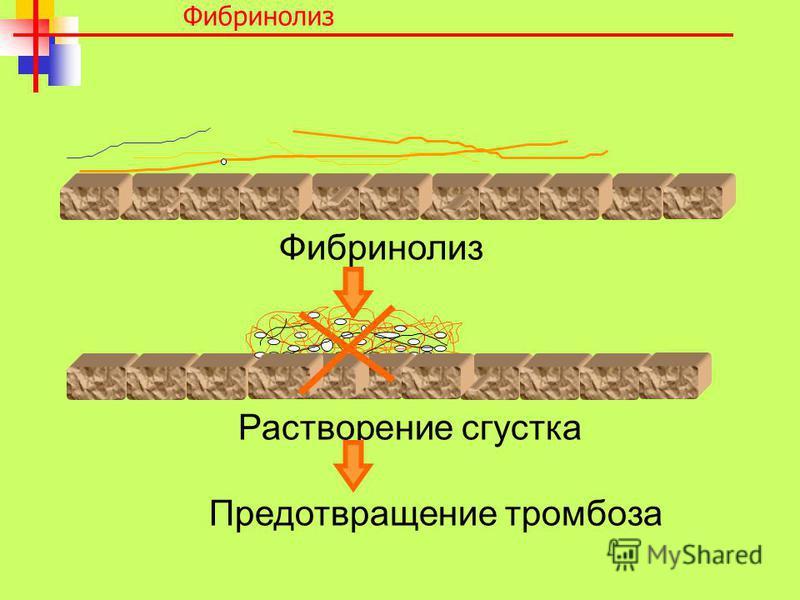Фибринолиз Растворение сгустка Предотвращение тромбоза Фибринолиз