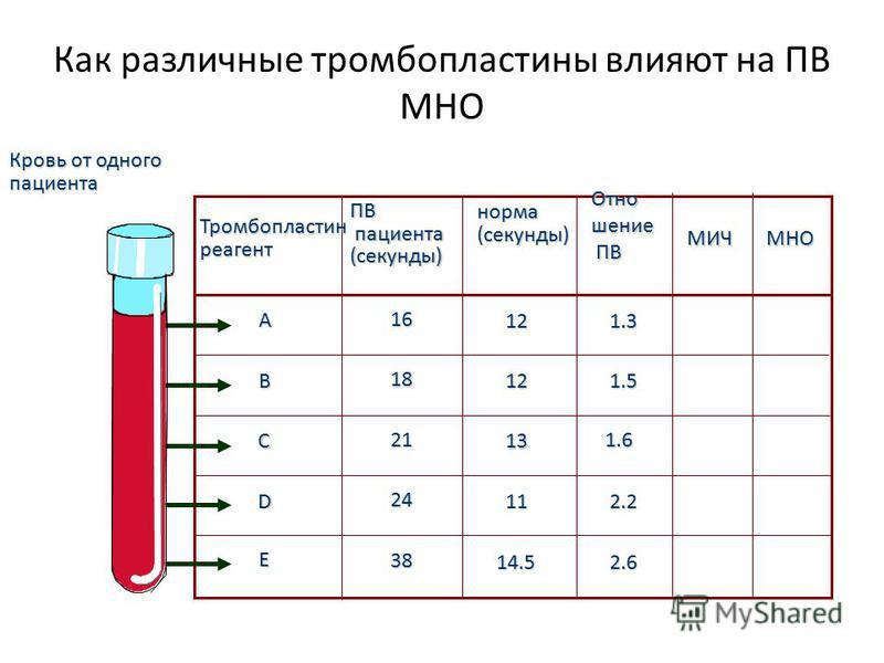норма(секунды) Отношение ПВ ПВ МИЧМНО 12 12 13 11 14.5 1.3 1.5 1.6 2.2 2.6 A B C D E Кровь от одного пациента ПВ пациента пациента(секунды) 16 18 21 24 38 Тромбопластинреагент Как различные тромбопластины влияют на ПВ МНО