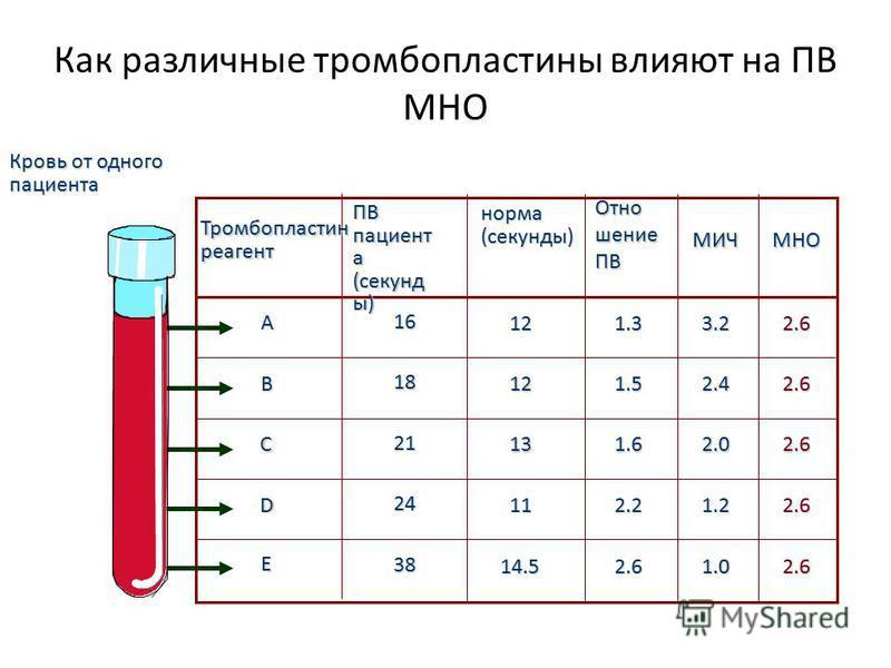 норма(секунды) ОтношениеПВ МИЧМНО 12 12 13 11 14.5 1.3 1.5 1.6 2.2 2.6 3.2 2.4 2.0 1.2 1.0 2.6 2.6 2.6 2.6 2.6 A B C D E Кровь от одного пациента 16 18 21 24 38 Тромбопластинреагент Как различные тромбопластины влияют на ПВ МНО ПВ пациент а (секунд ы