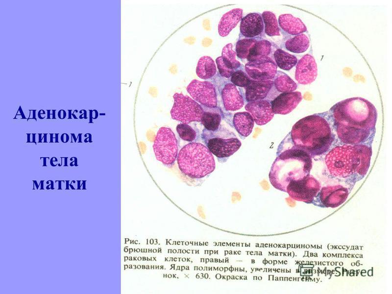 Аденокар- цинома тела матки